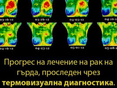 Термовизуална диагностика в град Гоце Делчев от 16 до 22 юли