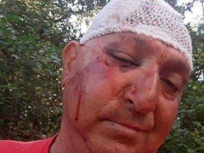 Роми нападнаха възрастна двойка съседи в село Дъбница